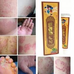 15g Növényi Antibakteriális bőrápoló krém ekcéma
